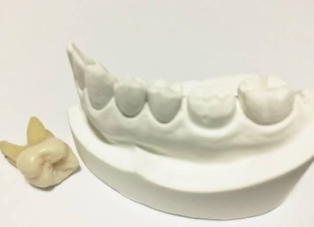 歯科医,歯医者,インプラント,入れ歯