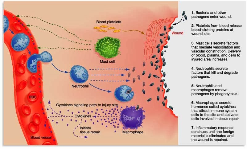 Inflammation2.jpg