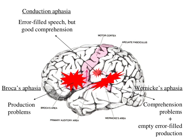brain-and-aphasia-18-728.jpg