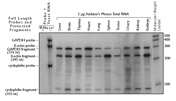 northern-blotting-nuclease-protection-assays-rt-pcr-fig-1.jpg