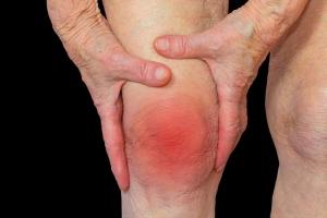 rheumatoid-arthritis-knee.jpg
