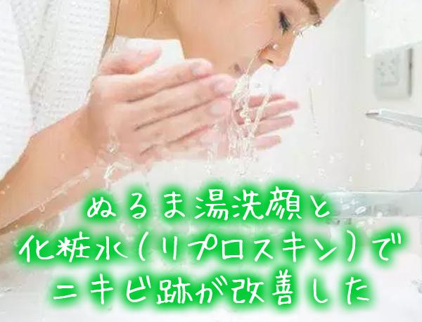 ぬるま湯洗顔と 化粧水(リプロスキン)で ニキビ跡が改善した