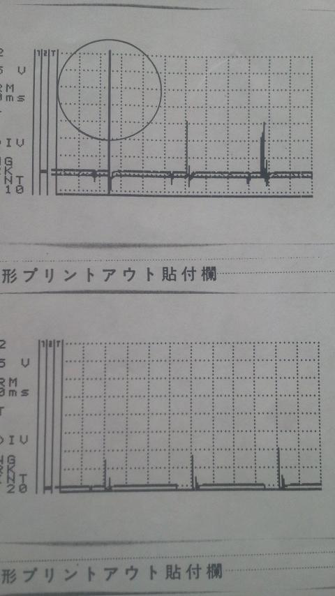 バランス波形